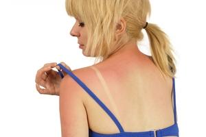 Как да се справите със слънчевото изгаряне!